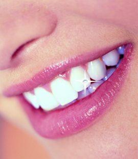 Dentalni nakit Swarovski