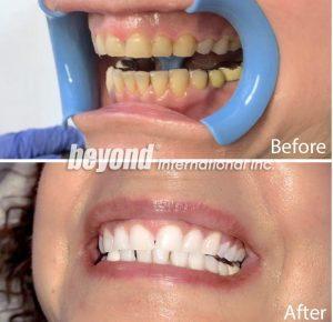 Beljenje zob pri stomatologu po metodi Beyond