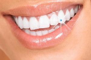 Dentalni kristal Swarovski