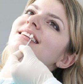 Beljenje zob pri stomatologu