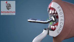 OBF preprečuje izhajanje aerosolov iz ustne votline